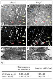 perp regulates enamel formation via effects on cell u2013cell adhesion
