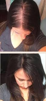 hair toppers for women dark brown hair toppers for women with thinning hair or hair loss