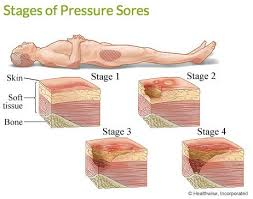How To Get Rid Of Bed Sores The 25 Best Bed Sores Ideas On Pinterest Pressure Ulcer Wound