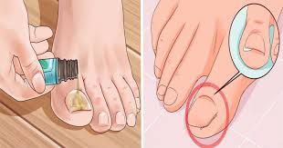 how to effectively remove a painful ingrown toenail without having