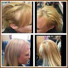 can you color hair after brain surgery zenhairstudio com hair extensions