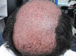 how thick is 1000 hair graft scared of hair transplants the truth about strip surgery