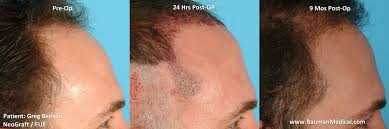 neograft recovery timeline neograft fue results healing and growth flickr