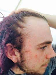 19 year old men hair styles 19 year old hair loss trouble baldtruthtalk com