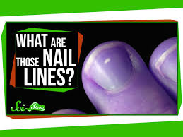 what are those lines on my nails youtube