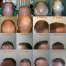 neograft recovery timeline neograft hair restoration clarksville tn male surgery nashville tn