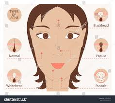 Face Mapping Pimples Types Acne Pimples Human Skin Poster Stock Illustration 497665585