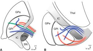 subthalamic nucleus deep brain stimulation basic concepts and