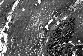eosinophilic fasciitis with multiple myeloma a new haematological