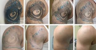 best clinic for tattoo removal in delhi india parmod gahlyan