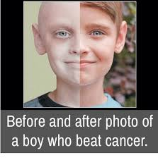 Memes Cancer - before and after photo of a boy who beat cancer meme on sizzle