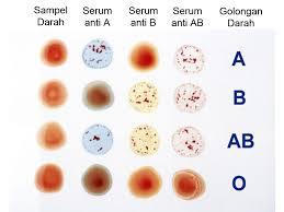 Serum Tes Golongan Darah biology learning center golongan dan transfusi darah