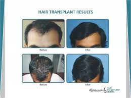 transplant hair second round draft does a fue hair transplant give natural results for everyone quora