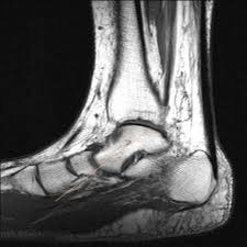 Ankle Ligament Tear Mri Tibialis Posterior Tendon Injury Imaging Overview Radiography