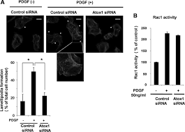 novel role of copper transport protein antioxidant 1 in neointimal