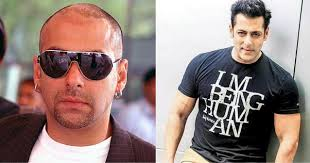 ranbir kapoor hair transplant who are the bald actors in bollywood opted for hair transplant or