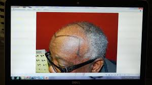 hairline restoration for black men woman hair loss transplant restoration surgery dr diep www