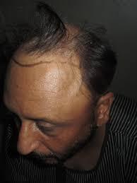 old hair at 59 hair loss forum