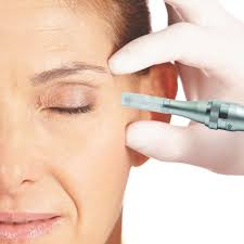 procedures using micro needling u0026 prp to heal skin