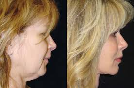 best hairstyles for sagging jowls quicklift facelift minimally invasive facelift