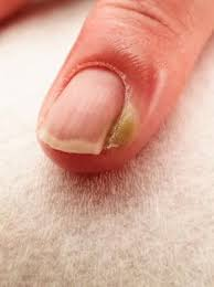 cuticle infection