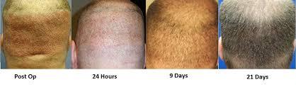 neograft recovery timeline neograft 2 0 sarasota hair transplant florida