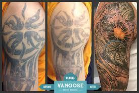 full u0026 half sleeve tattoo removal chicago il vamoose