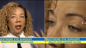 tiny color how tiny s eye color changing surgery actually works