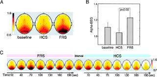 articles journal of neurophysiology download figure
