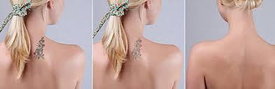 tattoo removal edmonton laser tattoo removal edmonton lucere skin