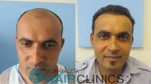 best hairtransplant in the world fue hair transplant in greece advanced hair clinics