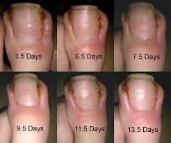the inside analysis the great ingrowing toenails saga