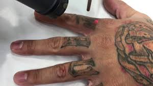 laser removal of tattoo letters on fingers youtube