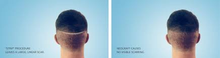 neograft recovery timeline neograft hair restoration in richmond va lewis plastic surgery