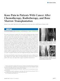 knee pain in patients with cancer after chemotherapy radiotherapy