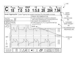 patent us8757152 ventilator initiated prompt regarding detection