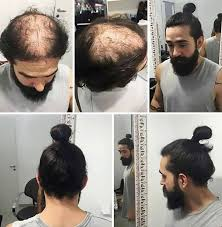 hairstyles for hiding a bald spot men are hiding baldness with man buns but it s riskier than you