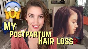 special cuts for women with hairloss postpartum hair loss why i cut my long hair off youtube