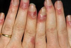 nail bed pain lupus symptoms rash and treatment