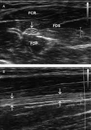 ultrasound of the nerves