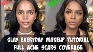 everyday makeup tutorial 2017 acne scars full coverage routine