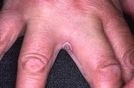 mycose siège bébé candidose les candidoses dermatologue en ligne