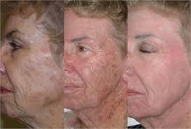 Light Therapy For Skin Led Therapy For Skin Rejuvenation Dr Berg Delaware