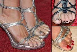 Comfortable Shoes After Foot Surgery Worst Shoes For Your Foot Health And Beauty With Pictures