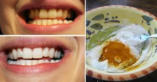 how to ideas creative ideas how to whiten your teeth using turmeric i