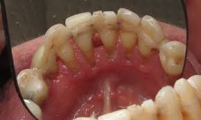 Cancer On Floor Of Mouth Pictures by Should I Pull All Of My Teeth And Get Dental Implants Ramsey A