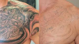 tattoo removal what you need to know