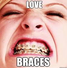 Brace Face Meme - 33 best braces images on pinterest orthodontics brace face and smile