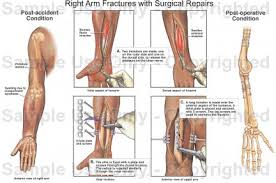 Anatomy Of The Right Arm Right Arm Fractures With Surgical Repairs Medical Illustration