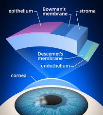 Diseases Of The Eye That Cause Blindness Fuchs U0027 Corneal Dystrophy